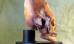 Elongated Skull - Cranial Deformation